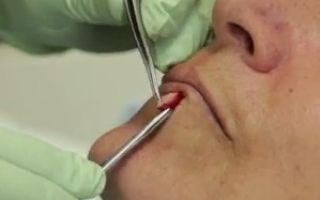 Стоит ли удалять диспластический меланоцитарный пигментный невус