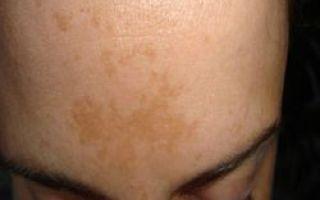 Пигментные пятна на спине: причины появления и способы удаления