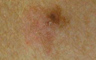 Меланоцитарный невус кожи: сложная и смешанная формы