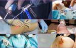 Удаление гигромы, проведение операции и период реабилитации