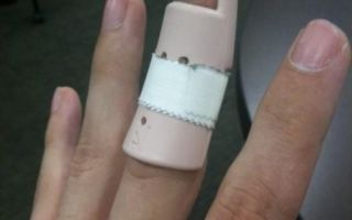 Причины и методы удаления шипицы на пальце руки