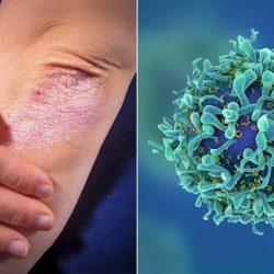 Причины и лечение псориаза у детей на разных стадиях
