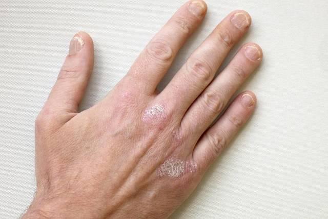 Симптомы дерматозов: как выглядит псориаз в начальной стадии
