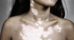 Пигментные пятна и причины их появления на шее, лечение
