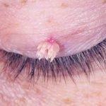 Причины и лечение папилломы на слизистой глаза разными методами
