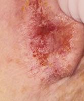 Причины, симптомы и лечение атопической экземы