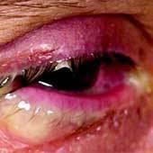 Герпес в глазу: симптомы инфекции и лечение