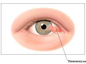 Нарост на глазу: причины и лечение образования на глазном яблоке