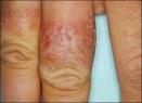 Причины, симптомы и лечение аллергического дерматита