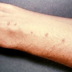Причины появления прыщей на руках: как бороться с гнойной сыпью
