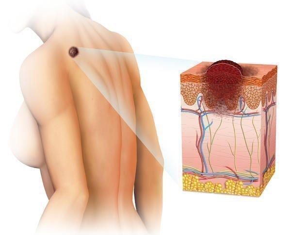 Характеристика и методы лечения волосяного невуса Беккера