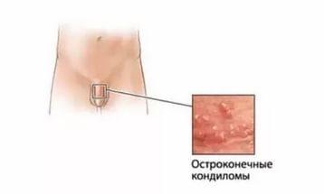 Остроконечные кондиломы: причины появления, симптомы и лечение