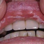 Грибок в горле: причины, симптомы и лечение заболевания