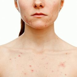 Причины появления плотных прыщей на коже
