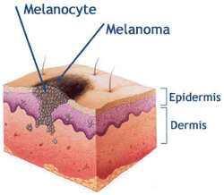 Меланома: ключевые симптомы, причины недуга и особенности лечения