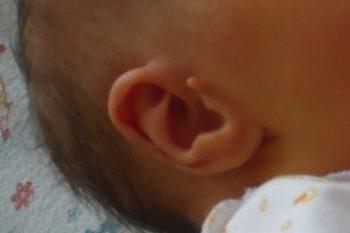 Причины образования и удаление папилломы в волосистой части головы