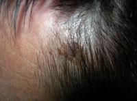 Значение родинки на голове в волосах: удалить её или оставить