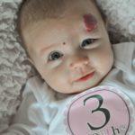 Родимые пятна у новорожденных: виды и причины появления