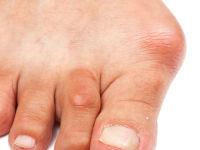 Нарост на пальце ноги: причины появления и особенности лечения