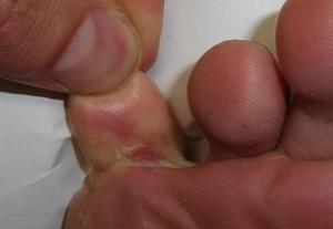 Чем лечить грибок на ногах между пальцами в домашних условиях