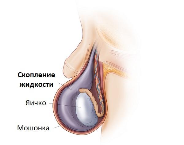 Причины образования шишки под кожей на мошонке у мужчин