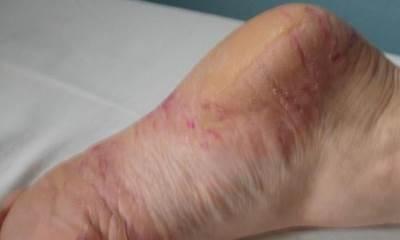 Как лечить псориаз на пальцах ног, стопе и голени