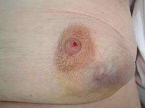 Лечение внутрипротоковой папилломы молочной железы